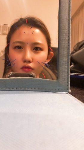 セルフ美容鍼♪
